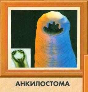 Анкилостома